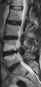 L4-5 Modic Type 1 Change - T1W parasagittal slice 0.25T MRI - MRI lumbar spine