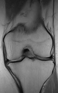 Knee Supine - PDW coronal slice 0.25T MRI - Knee degenerative joint disease