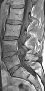 L4-5 Modic Type 2 Change - T1W parasagittal slice 0.25T MRI - MRI lumbar spine