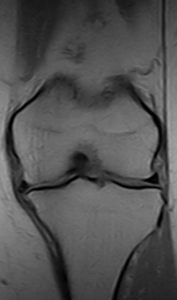 Knee Standing Medial Compartment Reduction- T1W coronal slice 0.25T MRI - Knee degenerative joint disease