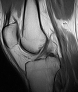 Knee-Normal ACL-PDW sagittal slice 0.25T MRI - Diagnosis of anterior cruciate ligament injury (ACL)