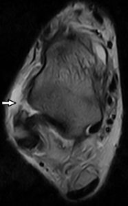 Right Ankle 2-Ruptured ATFL-T2W axial slice 0.25T MRI - Correct diagnosis of an ankle sprain is vital to ensure that the best treatment can be provided.